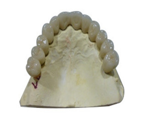 Porcelain Fused Metal Crowns and Bridges